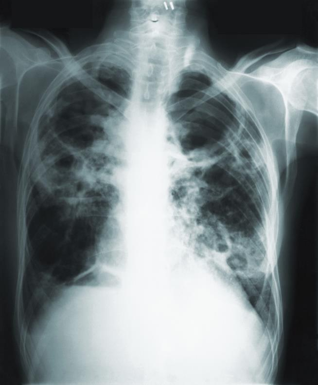 Researchers now closer to new vaccine for TB