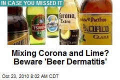 Careful With the Lime: It's 'Mexican Beer Dermatitis'