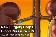 Surgery Lowers Blood Pressure Up to 30%
