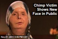 Chimpanzee Attack Victim Charla Nash Shows Surgically Transplanted Face in Public