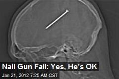 Nail Gun Fail: Yes, He's OK