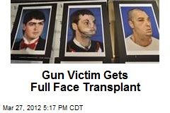 Gun Victim Gets Full Face Transplant