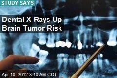 Dental X-Rays Linked to Brain Tumor Risk