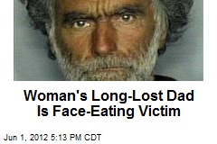 Woman's Long-Lost Dad Is Face-Eating Victim