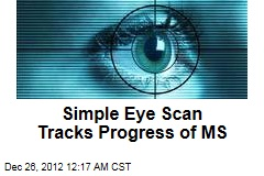 Simple Eye Scan Tracks Progress of MS