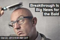 Breakthrough Is Big News for the Bald