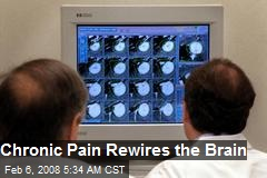 Chronic Pain Rewires the Brain