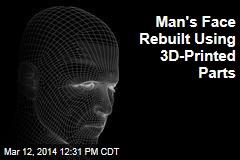 Man's Face Rebuilt Using 3D-Printed Parts