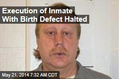 Execution of Inmate With Birth Defect Halted