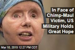 In Face of Chimp-Maul Victim, US Military Holds Great Hope