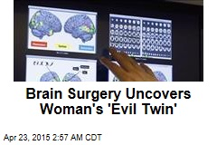Brain Surgery Uncovers Woman's 'Evil Twin'