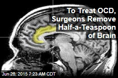 To Treat OCD, Surgeons Remove Half-a-Teaspoon of Brain