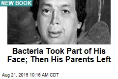 Bacteria Took Part of His Face; Then His Parents Left