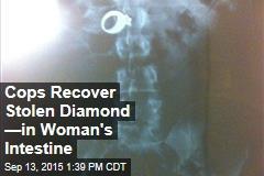 Cops Recover Stolen Diamond —in Woman's Intestine