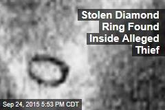 Stolen Diamond Ring Found Inside Alleged Thief