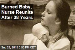 Burned Baby, Nurse Reunite After 38 Years