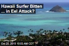 Hawaii Surfer Bitten ... in Eel Attack?