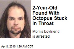 2-Year-Old Found With Octopus Stuck in Throat