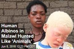 Human Albinos in Malawi Hunted Like 'Animals'