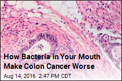 How Bacteria in Your Mouth Make Colon Cancer Worse