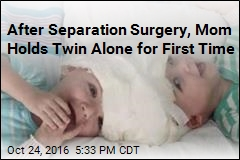 After Separation Surgery, Mom Holds Twin Alone for First Time