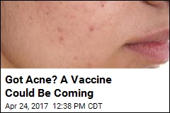 Acne Fighters Say Vaccine May Be on the Horizon
