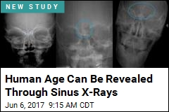 Human Age Can Be Revealed Through Sinus X-Rays