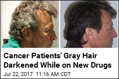 Cancer Patients' Gray Hair Darkened While on New Drugs