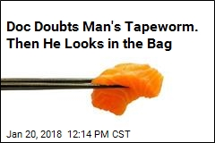 Doc Doubts Man's Tapeworm. Then He Looks in the Bag