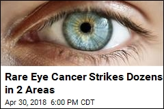 Medical Mystery: 2 Apparent Clusters of Rare Eye Cancer