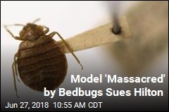 Model 'Massacred' by Bedbugs Sues Hilton