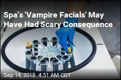 'Vampire Facials' May Have Exposed People to HIV