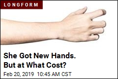 She Got New Hands. But at What Cost?