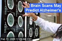 Brain Scans May Predict Alzheimer's