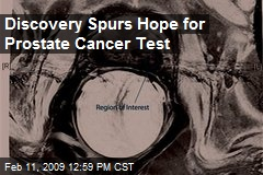 Discovery Spurs Hope for Prostate Cancer Test