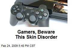 Gamers, Beware This Skin Disorder