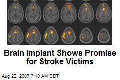 Brain Implant Shows Promise for Stroke Victims