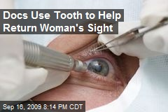 Docs Use Tooth to Help Return Woman's Sight