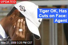 Tiger OK, Has Cuts on Face: Agent
