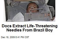 Docs Extract Life-Threatening Needles From Brazil Boy