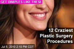 12 Craziest Plastic Surgery Procedures