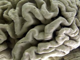 Teen Dies From Tapeworms in the Brain