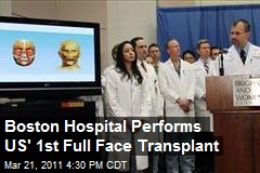 Boston Hospital Performs US' 1st Full Face Transplant