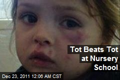 Tot Beats Tot at Nusery School