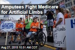 Amputees Fight Medicare for Artificial Limbs