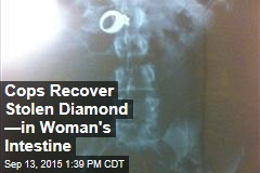 Cops Recover Stolen Diamond —in Woman's Intestine