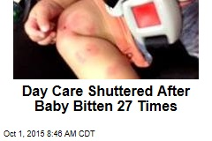 Day Care Shuttered After Baby Bitten 27 Times