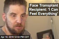 Face Transplant Recipient: 'I Can Feel Everything'