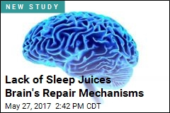 Lack of Sleep May Cause Brain to 'Eat' Parts of Itself