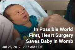 In Possible World First, Heart Surgery Saves Baby in Womb